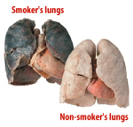 smokers-lungs-comparison1